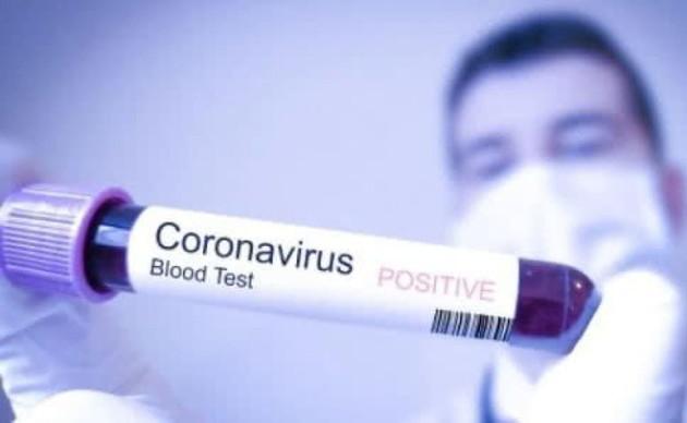 Тревожные цифры: больницы Ивано-Франковска не будут принимать пациентов с COVID-19